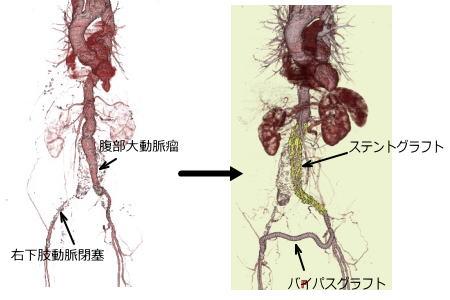 済生会宇都宮病院 - ハイブリッド治療